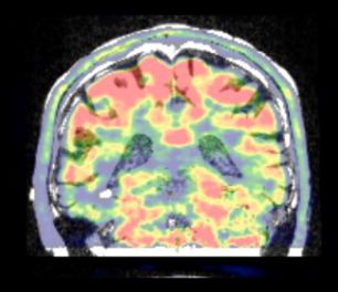 MINDView Project – First patient scanned